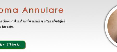 Granuloma Annulare Appearance