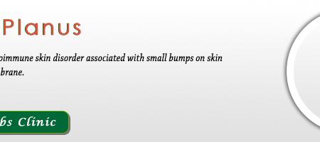 Lichen Planus of the Skin