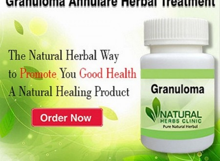 Granuloma Annulare: Its Recovery with Natural Remedies